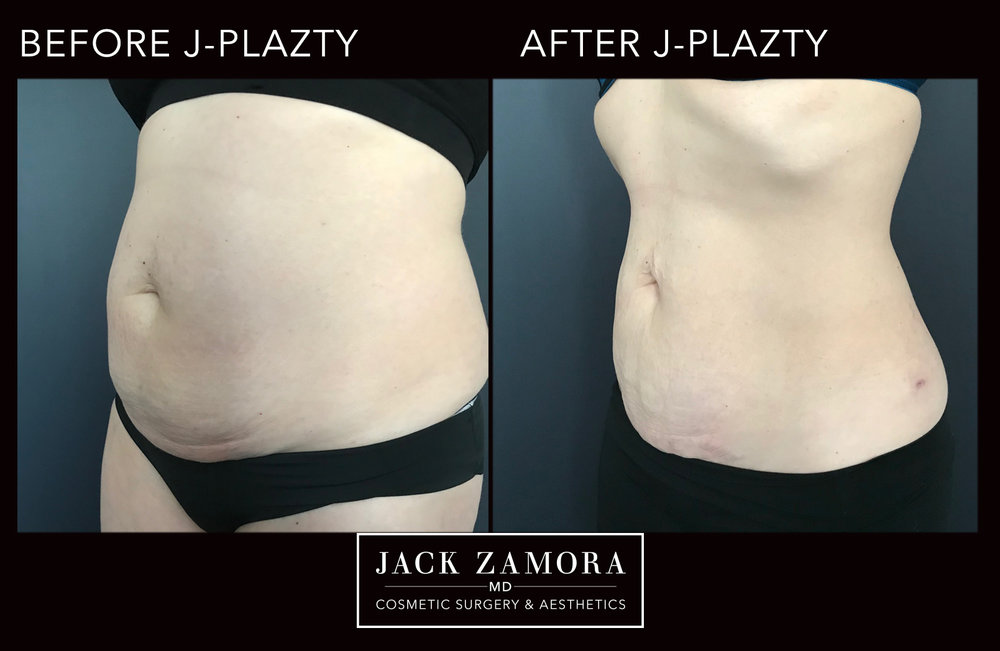 J-Plazty_Body_6_Post_2weeks_45.jpg