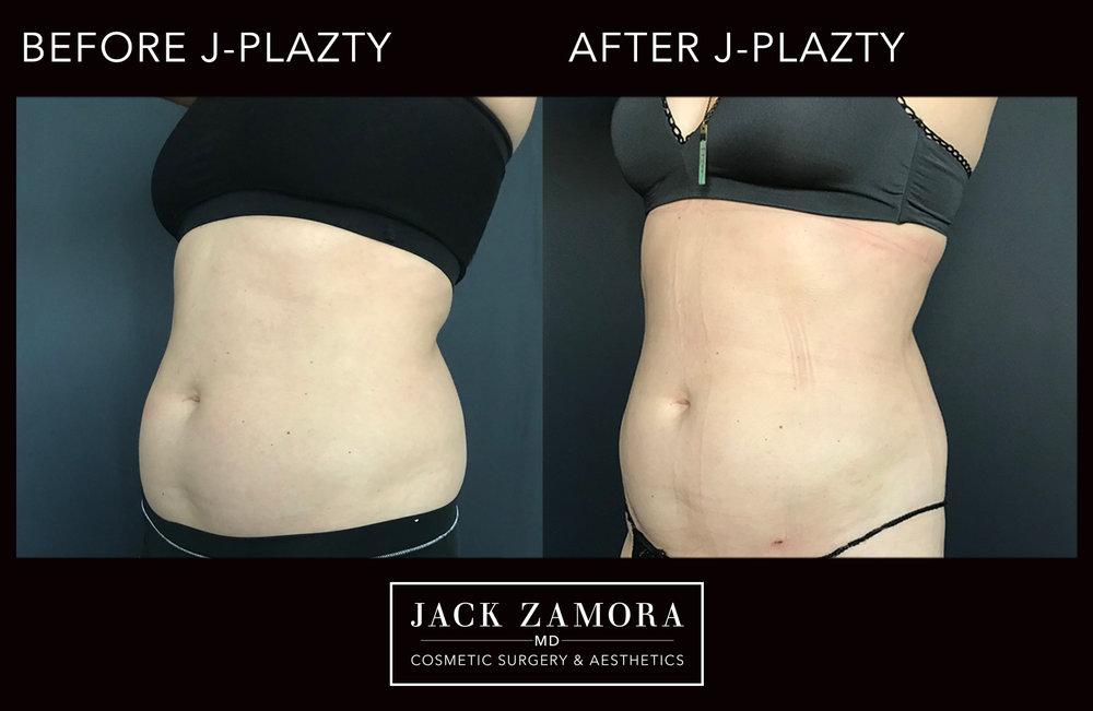 J-Plazty_Body_5_Post_2weeks_45.jpg