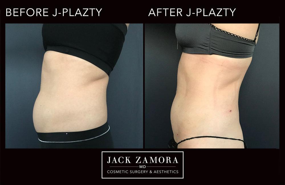 J-Plazty_Body_5_Post_2weeks_90.jpg