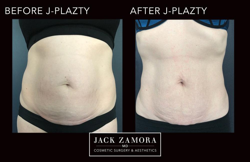 J-Plazty_Body_6_Post_2weeks_Front.jpg