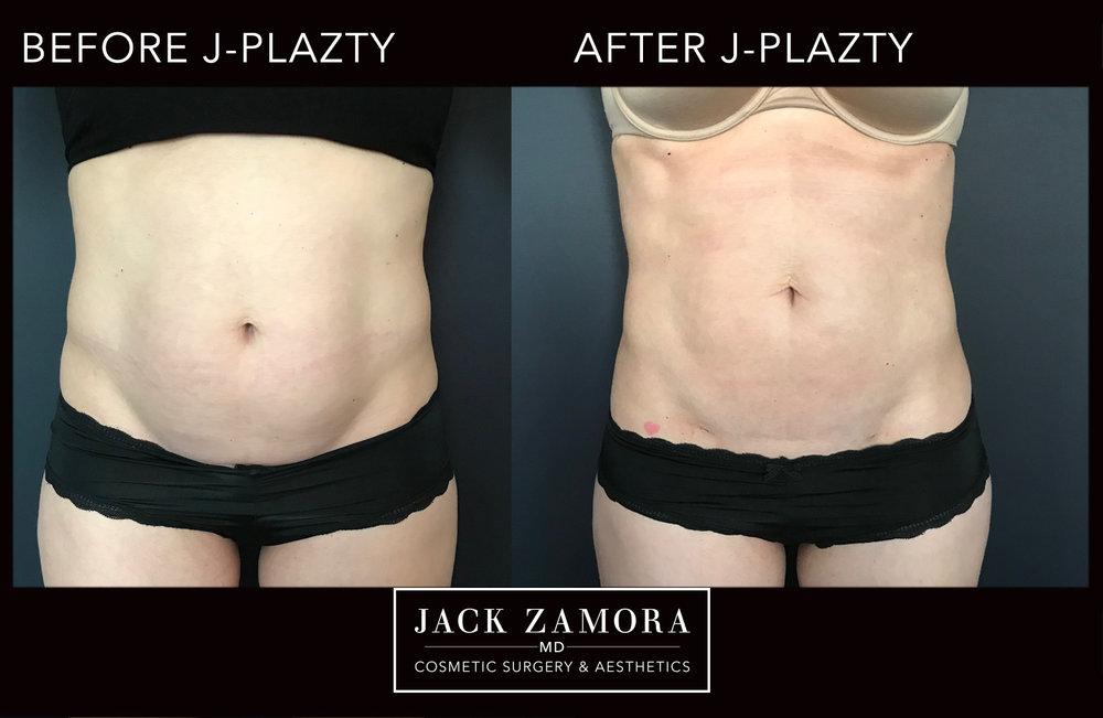 J-Plazty_Body_4_Post_2weeks_Front.jpg