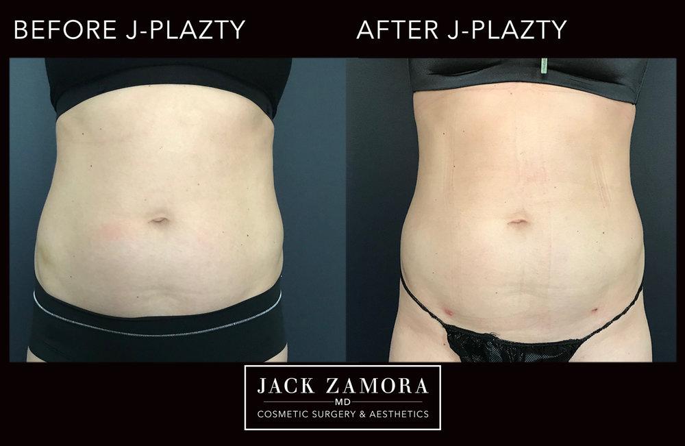 J-Plazty_Body_5_Post_2weeks_Front.jpg