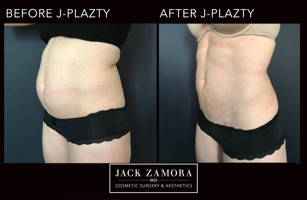 J-Plazty_Body_4_Post_2weeks_45.jpg