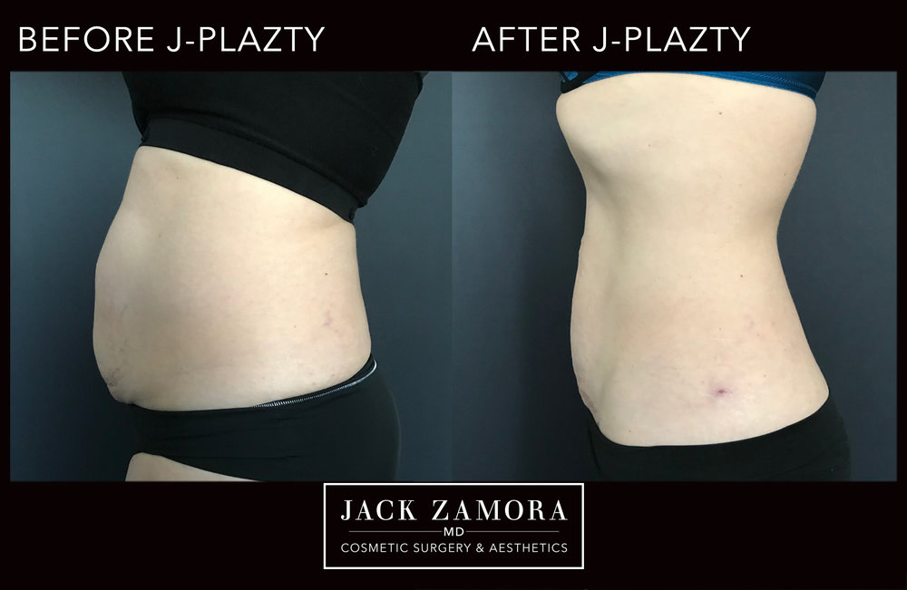 J-Plazty_Body_6_Post_2weeks_90.jpg