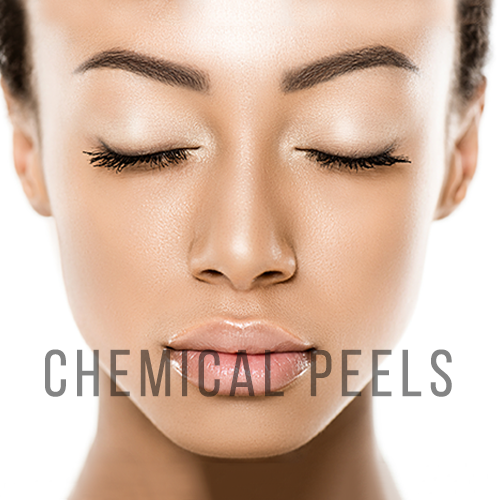 Chemical Peels help with anti aging, acne and pigmentation
