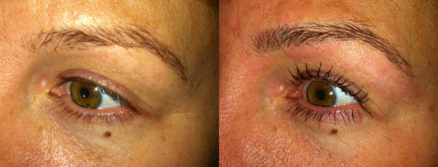 Brow enhancement healed.