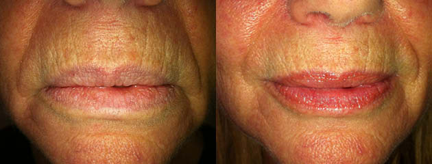 One month healed with Vaseline for gloss. Natural pigment lip stain.