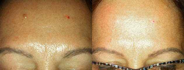 Mole removal on forehead. One month healed after one treatment.