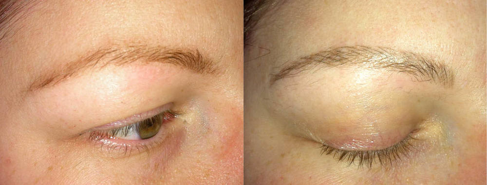 Eyebrow one month healed.