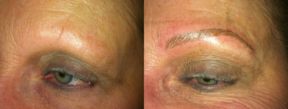 Alopecia client immediately after brow tattoo.