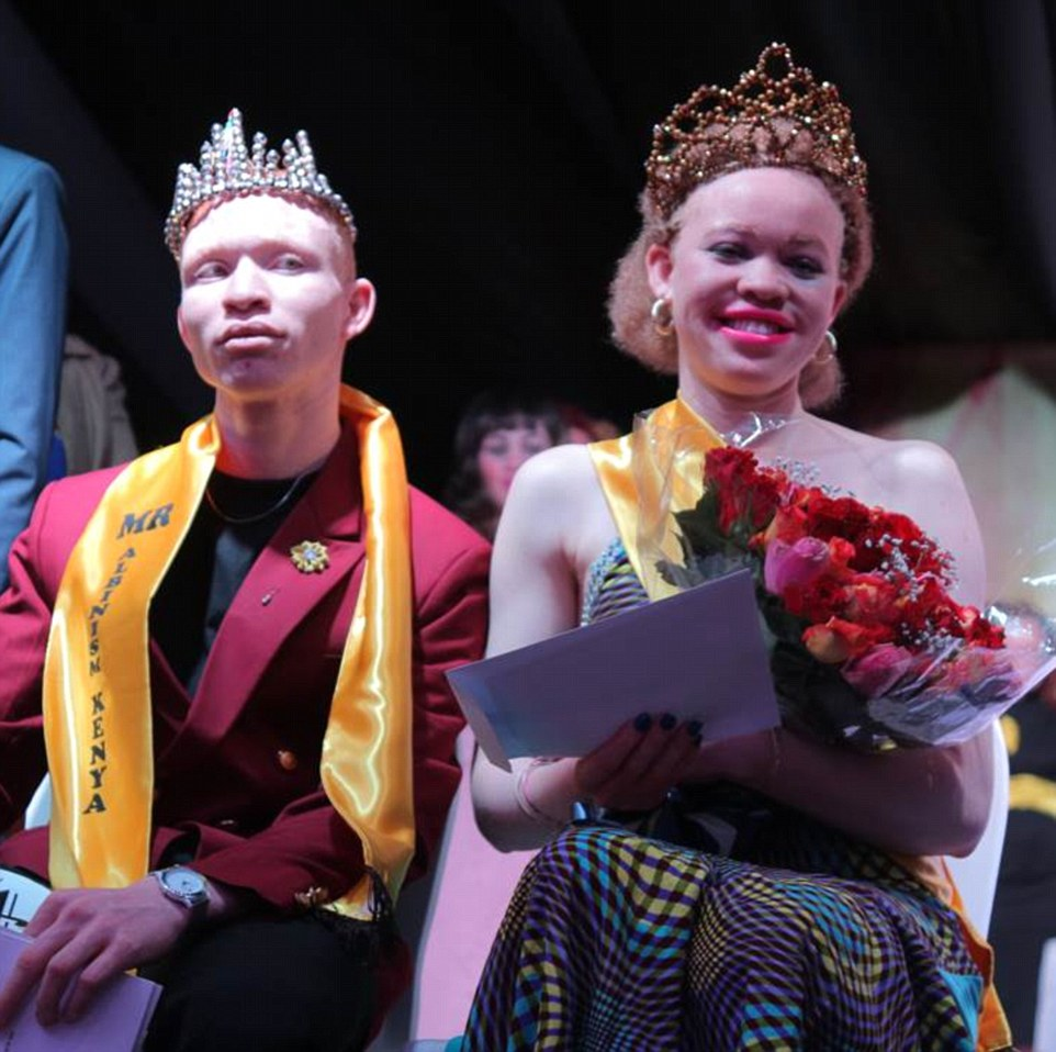 Winners of the 2017 Albino Pageantry, Kenya // Source: Daily Mail UK