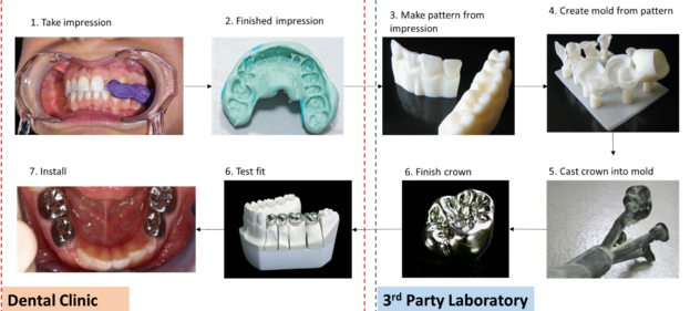 Dental_Prosthetics_traditional_process.jpg