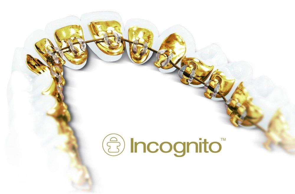 Incognito_Appliance.jpg