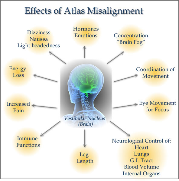 Carlsbad Atlas Chiropractic Misalignment