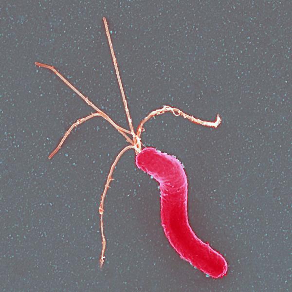 Helicobacter pylori. Source: AJ Cann CC BY-SA 3.0 via Flickr