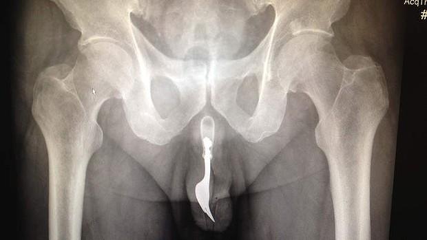 Canberra Man Fork Urethra Peehole Full Disclosure