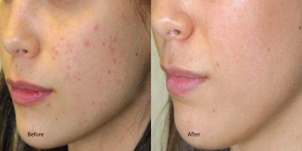 Before and After course of 6 peels -