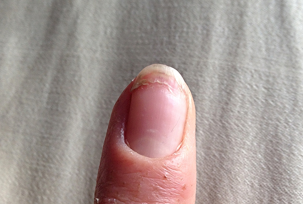 It might not look too bad, but man did that nail feel otherwise.