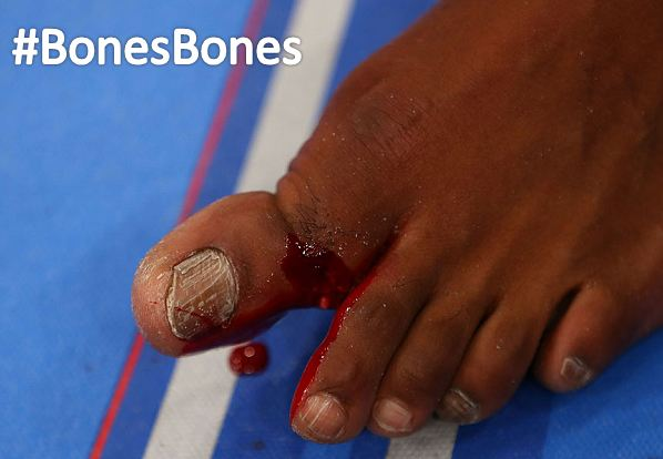 "Jon ""Bones"" Jones shows his bones.  #BonesBones"