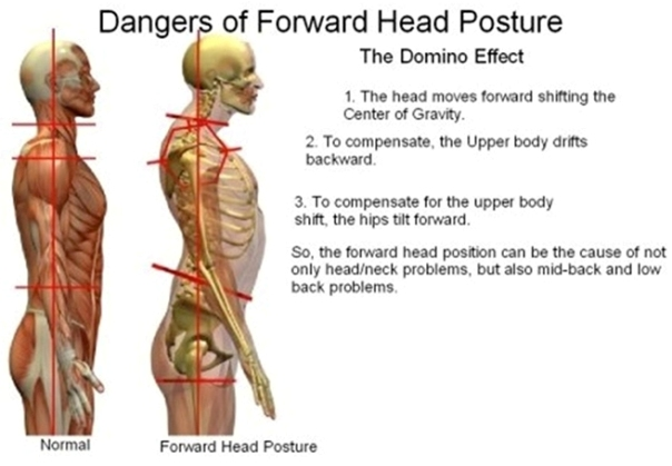 Forward-Head-Posture.jpg