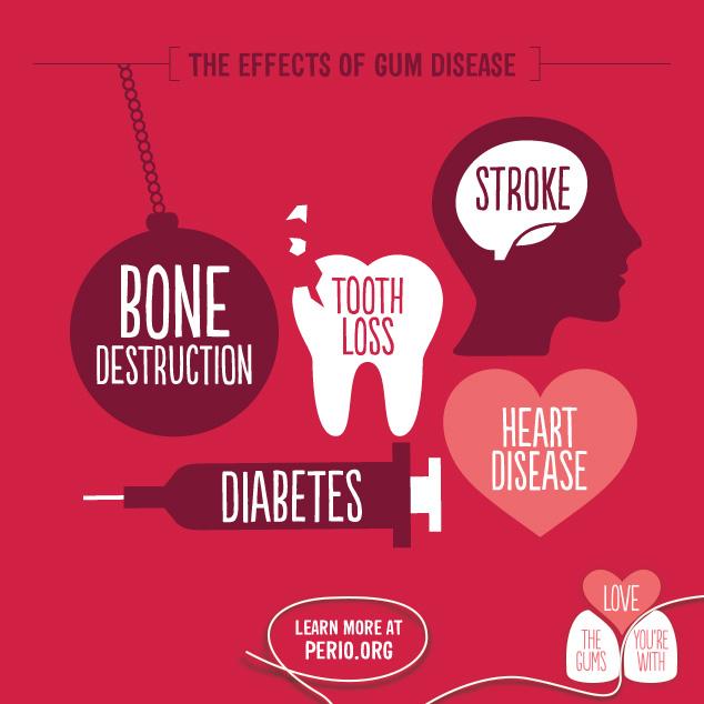 Además de la Diabetes, la artritis, enfermedades cardiovasculares, y neurovasculares también thenen lazos con las enfermedades de las encías.