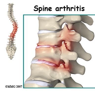 spinalarthritis_SantaClaraChiropractor