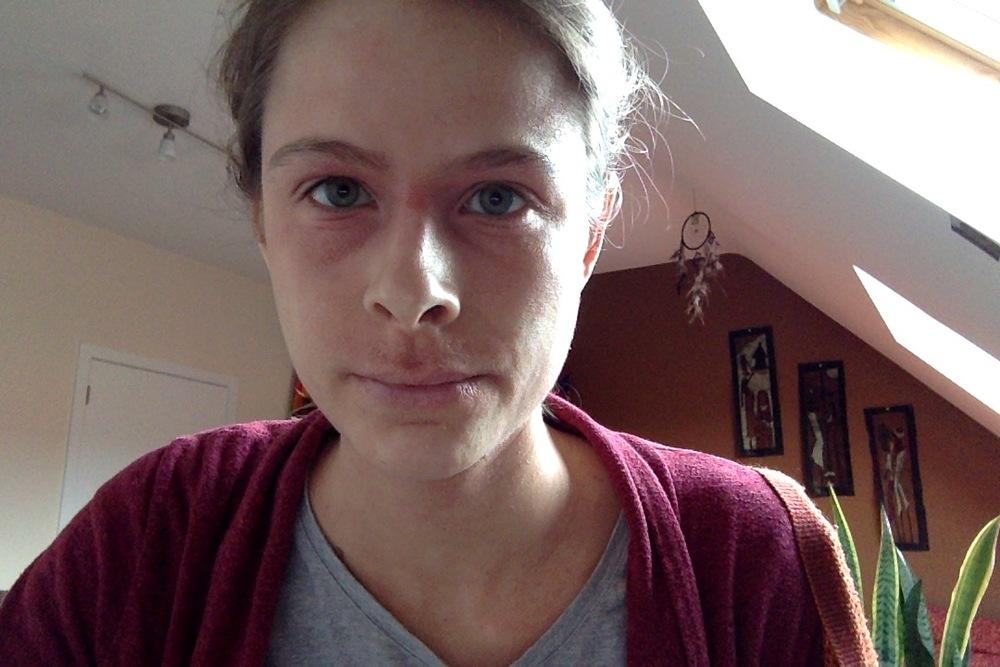 Eczema flare-up last Winter