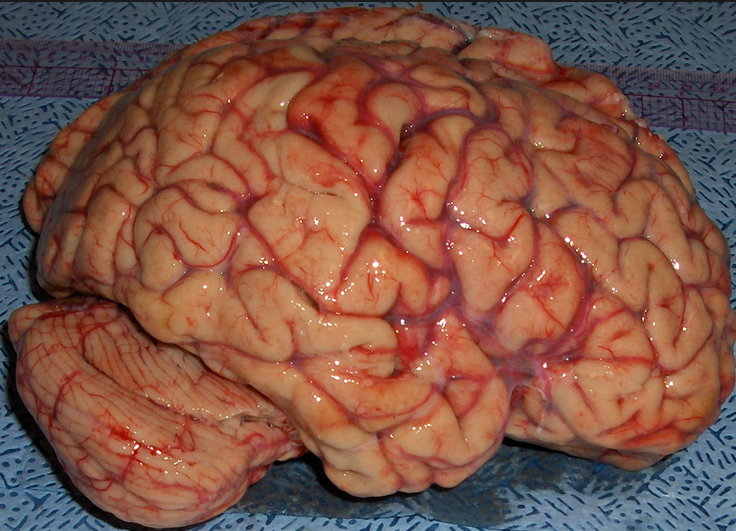 Not to gross you out, but does this look like a machine to you? This is what a brain looks like.