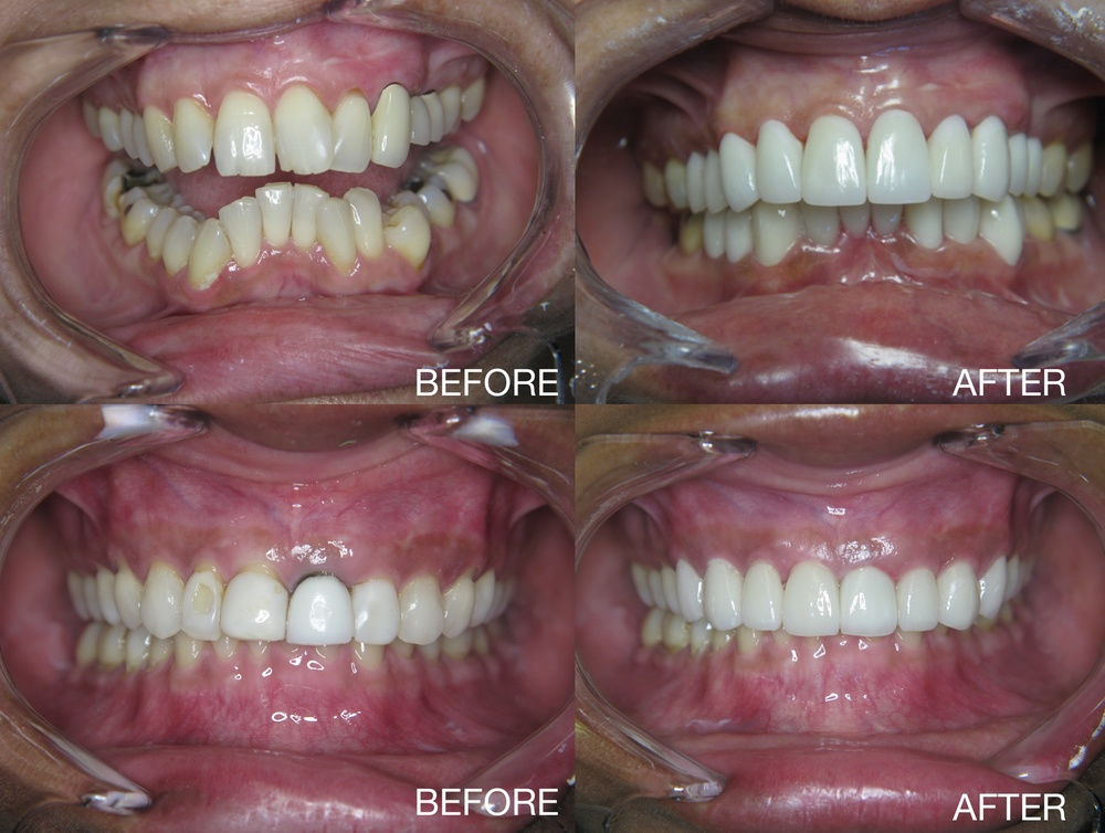 dental-crowns-before-and-after-San-Diego