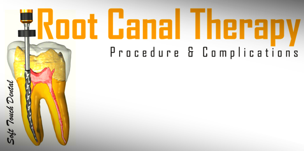 root-canal-san-diego