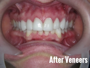Porcelain Dental Veneers Before And After Photos 4