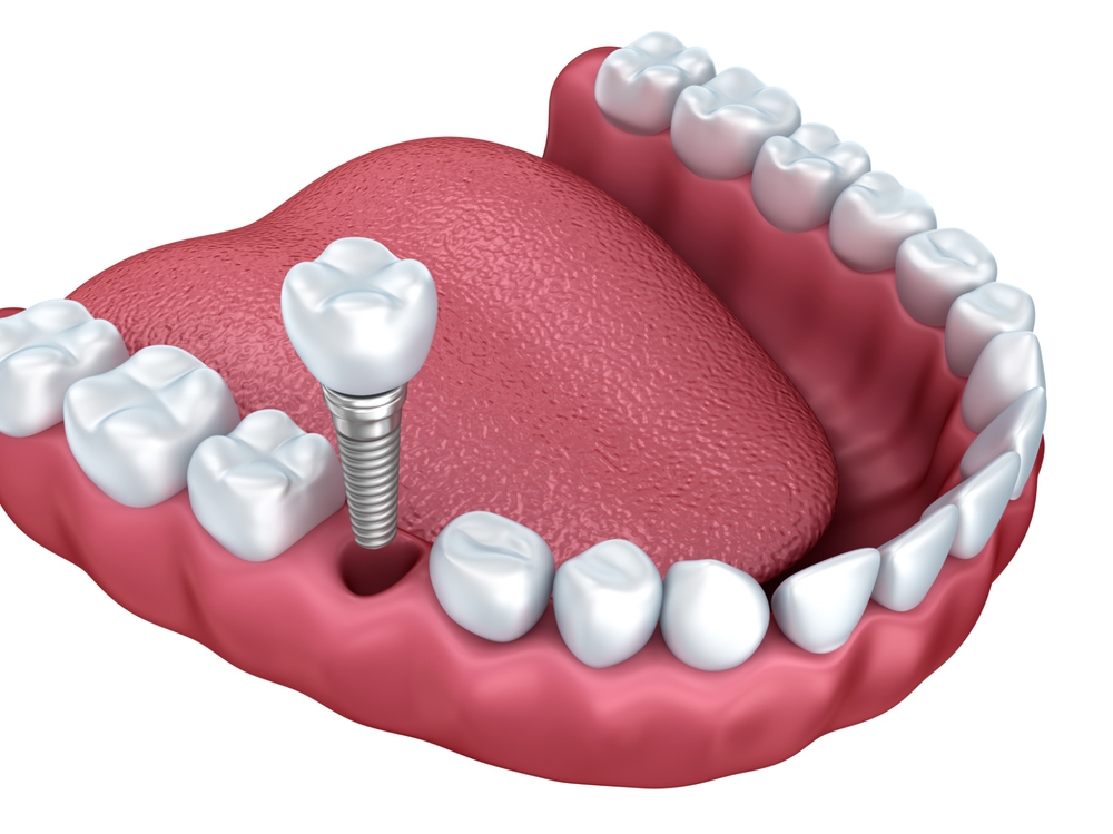 Dental Implants (actual Patients)
