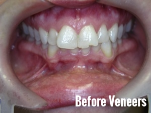 Porcelain Dental Veneers Before And After Photos 3