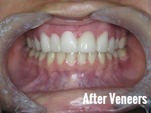 Porcelain Dental Veneers Before And After Photos 6