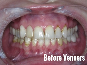 Porcelain Dental Veneers Before And After Photos 7