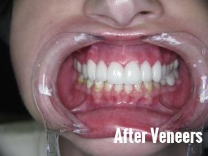 Porcelain Dental Veneers Before And After Photos 8