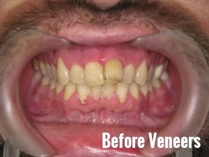Porcelain Dental Veneers Before And After Photos 9