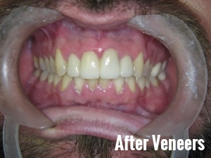 Porcelain Dental Veneers Before And After Photos 10