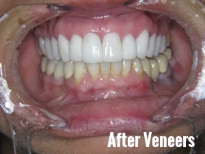 Porcelain Dental Veneers Before And After Photos 14