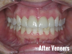 Porcelain Dental Veneers Before And After Photos 16