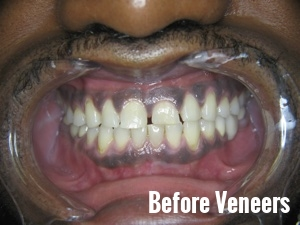 Porcelain Dental Veneers Before And After Photos 17