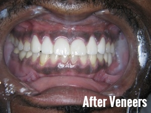 Porcelain Dental Veneers Before And After Photos 18