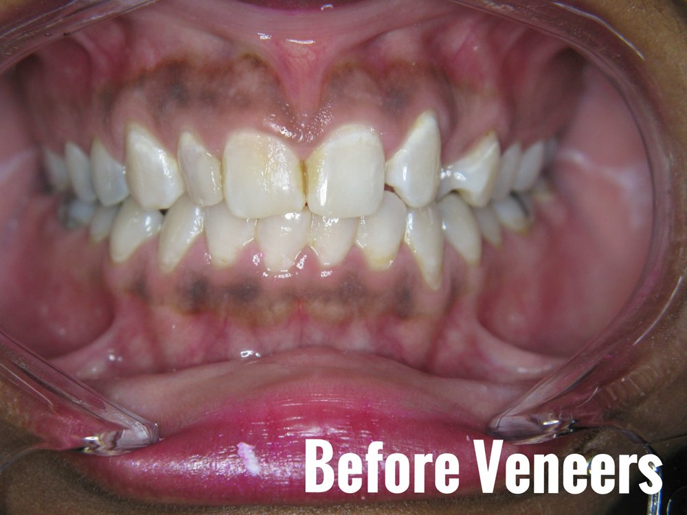 Porcelain Dental Veneers Before And After Photos 19