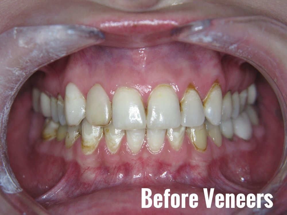 Porcelain Dental Veneers Before And After Photos 21