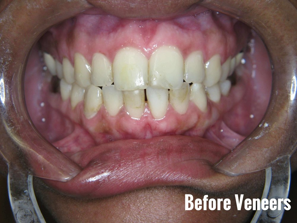 Porcelain Dental Veneers Before And After Photos 22