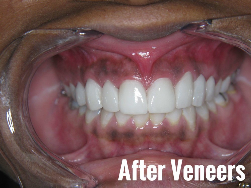 Porcelain Dental Veneers Before And After Photos 20