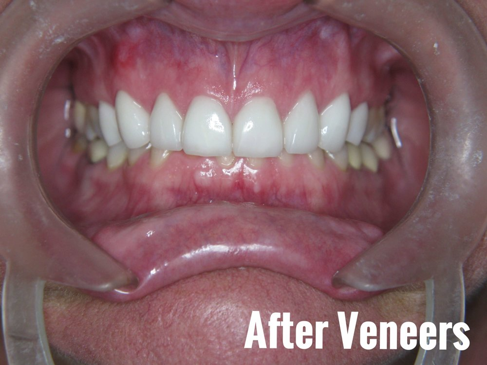 Porcelain Dental Veneers Before And After Photos 25