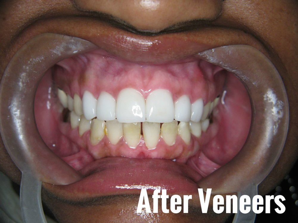 Porcelain Dental Veneers Before And After Photos 23