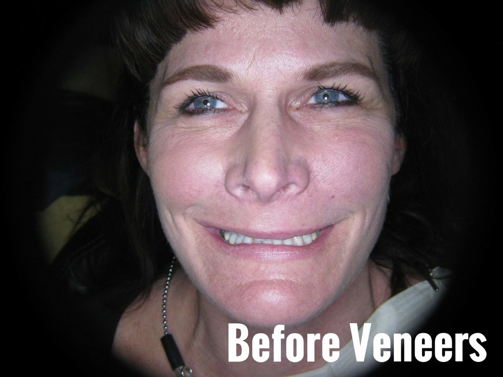 Porcelain Dental Veneers Before And After smile Photos 27