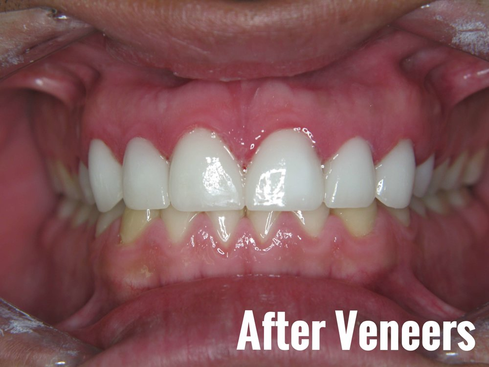 Porcelain Dental Veneers Before And After Photos 27